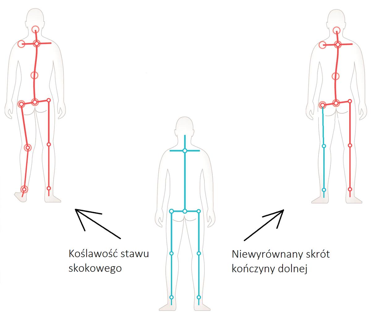 koślawość stawu skokowego - niewyrównany skrót kończyny dolnej