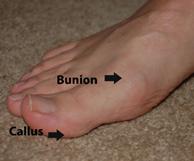 stopa fundamentem ciała