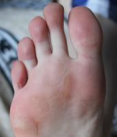 zdjęcie stopy